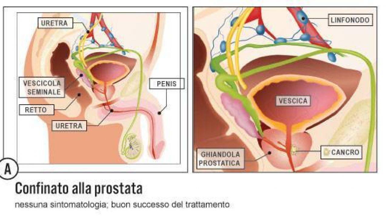scoperta del cancro alla prostata