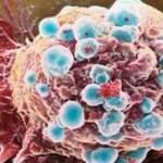 Cancro e tumori: l'Italia registra il più alto numero di guarigioni