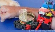 Il sesto dito robotico sviluppato al SIRSLab; insieme al braccio paralizzato funziona come una pinza per afferrare gli oggetti