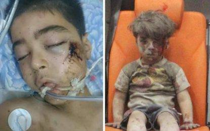 Ancora bambini morti ad Aleppo. Anche Alì, il fratellino di Omran