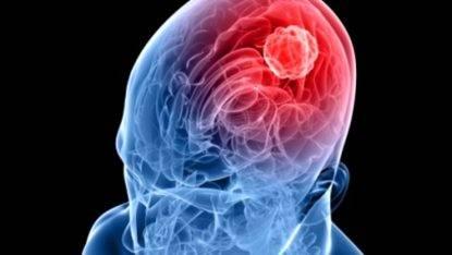 Meningite, uccise da meningococco C le due studentesse milanesi