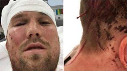 Stoccarda, Grosskreutz aggredito nella notte: in ospedale