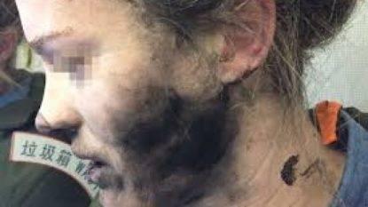 Esplodono gli auricolari durante il volo: volto devastato dalle ustioni