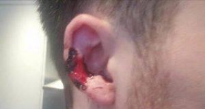 strappa orecchio a morsi