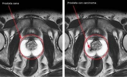 leiaculazione previene lingrossamento della prostata