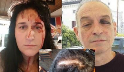 Rifiutano vino a cliente ubriaco: vengono pestati a sangue