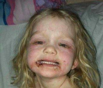 bambina reazione allergica