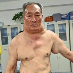 L'uomo cinese affetto dalla malattia di Madelung