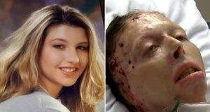 Bruciata viva dall'ex, Judy muore: ma testimonierà lo stesso contro il suo assassino, ecco come