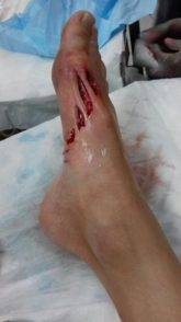 ferite piede squalo