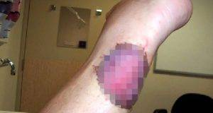ulcera australia