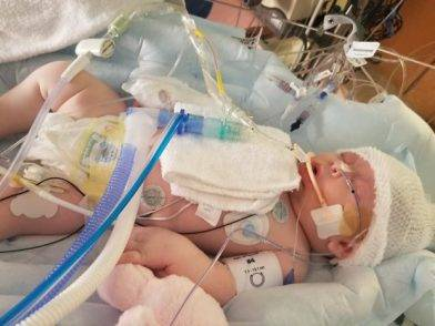 Hovanga Mckenna, la bimba colpita da una palla da softball alla testa