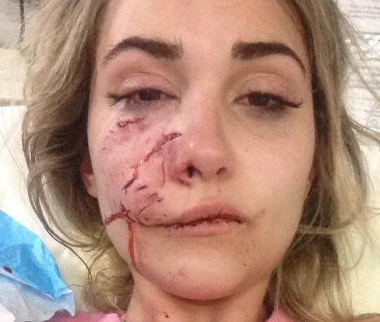 """Modella 23enne aggredita da un pitbull: """"Non ho fatto nulla per provocarlo"""""""