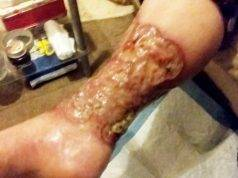 La cancrena alla gamba di Tanya Czernozukow
