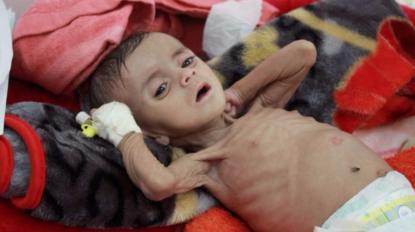 Rassegna 1.7. L'Arabia Saudita in Yemen ha ucciso 430 bambini, e il mondo tace