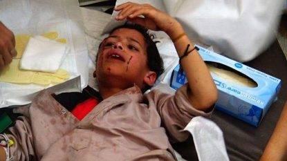 Yemen, raid colpisce un bus- 43 morti. È strage di bambini