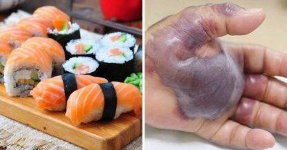 Mangia sushi e gli tagliano la mano. 'Infezione da pesce crudo'