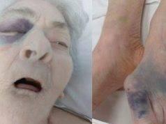 """Choc nella casa di riposo, anziana trovata con botte e fratture. Il figlio: """"Voglio la verità"""""""