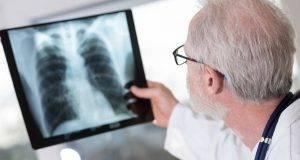 Emergenza polmonite