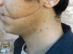 Studente sfregiato al volto per una rapina, trovati i suoi aggressori: niente carcere per loro