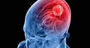 Nuovo caso meningite in Italia, si torna ad avere paura