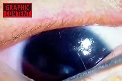 Medico estrae vermi dall'occhio di un neonato