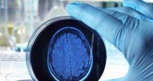 per ottenere informazioni sulle malattie cerebrali