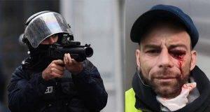 Francia, la polizia carica e manganella i medici che cercano di soccorrere i gilet gialli feriti
