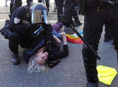 """73enne con cranio fratturato dalla polizia, Macron choc: """"Le auguro di essere più saggia"""""""
