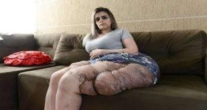 neurofibromatosi tumori bullismo
