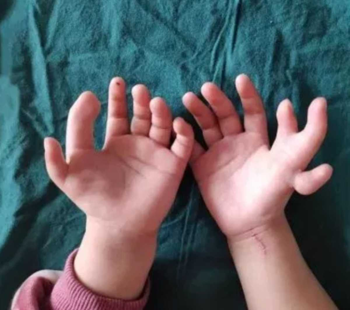 Difetto genetico ereditario, bimba nasce con 12 dita
