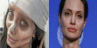 angelina jolie sahar tabar chirurgia estetica