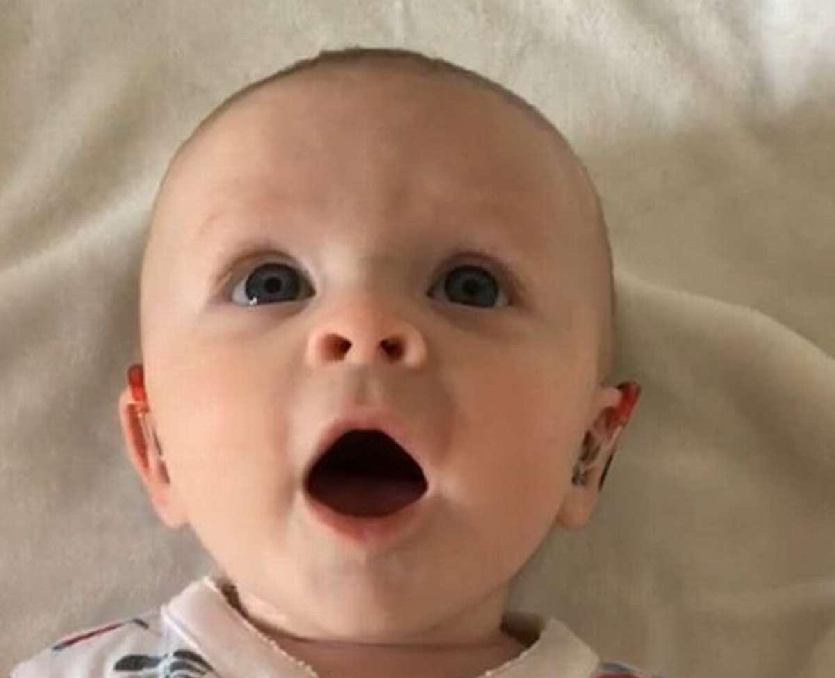 Bimba sorda sente per la prima volta: la sua reazione fa sci