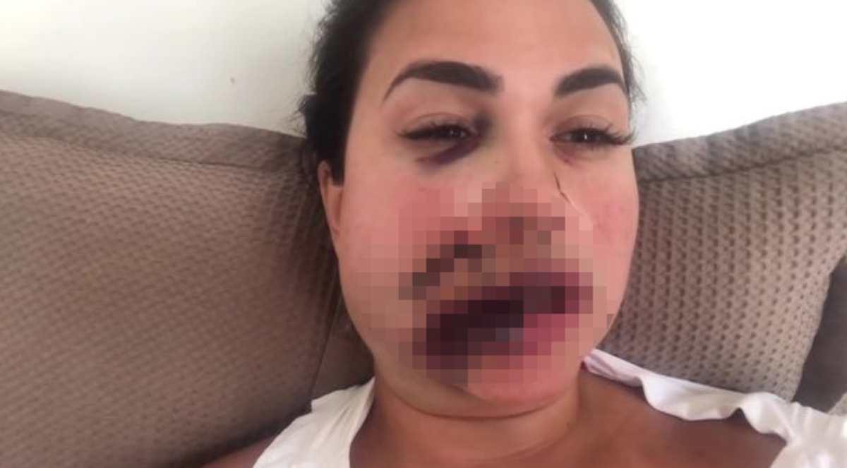 Salta la fila e scatena una rissa nei bagni di un ristorante: una modella brasiliana ne esce male