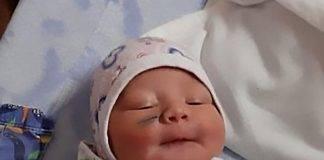 Bambina sfregiata durante il cesareo