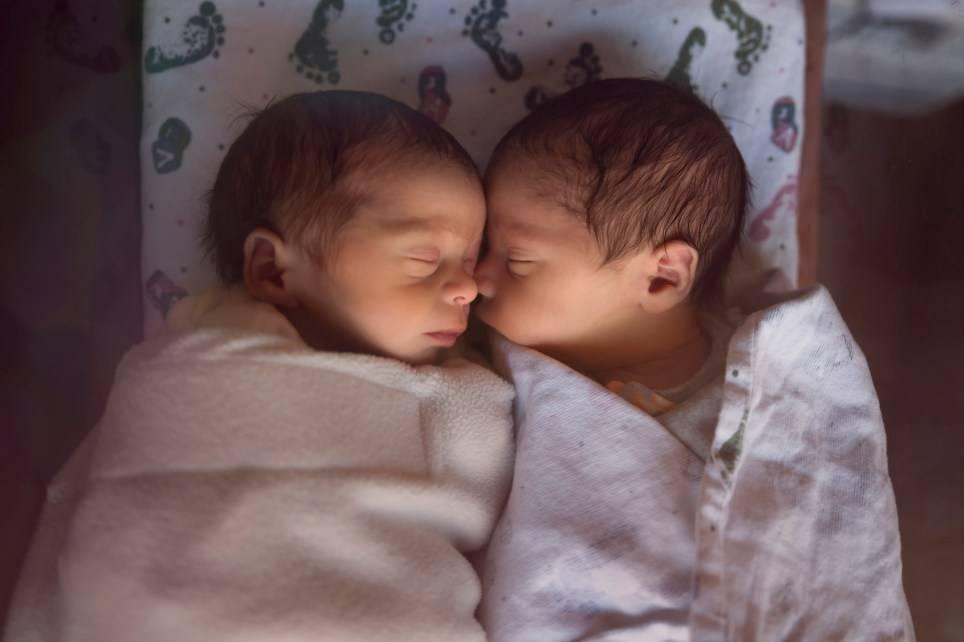 Dopo lunghe peripezie riescono a far nascere coppia di gemel