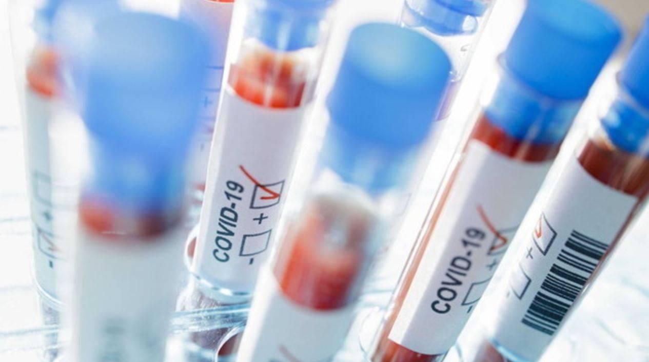 Coronavirus, oggi in Italia meno di mille nuovi casi: il bollettino