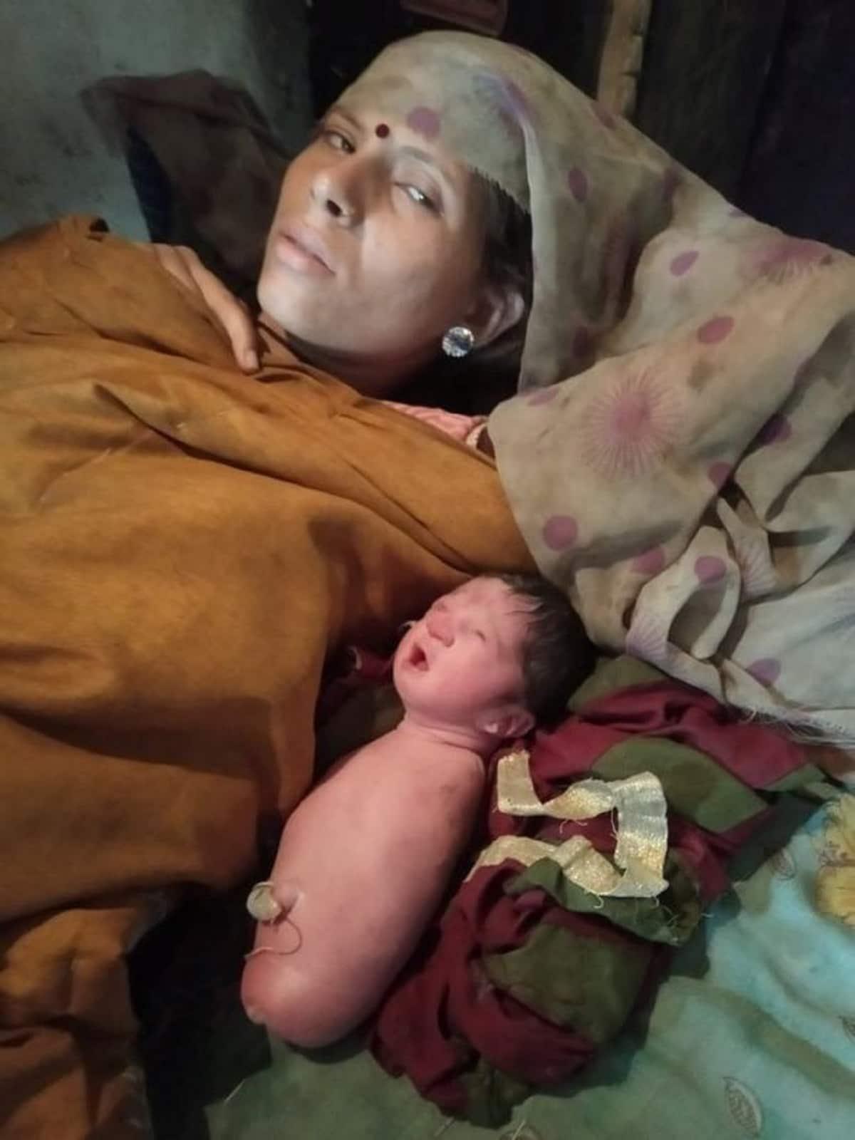 Bambina nata senza braccia e gambe