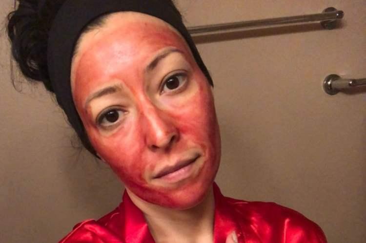 sangue mestruale trattamento viso