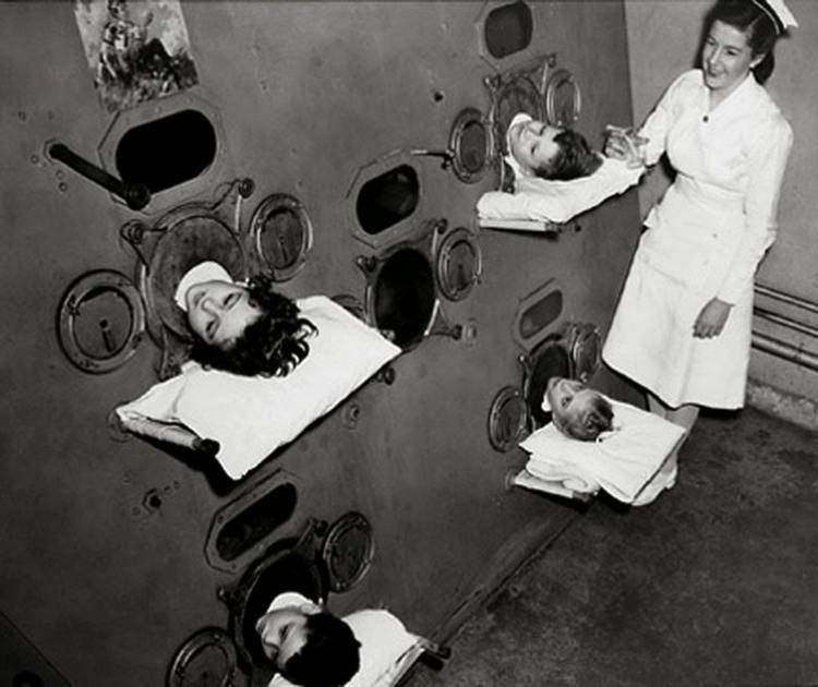 polmone d'acciaio poliomielite