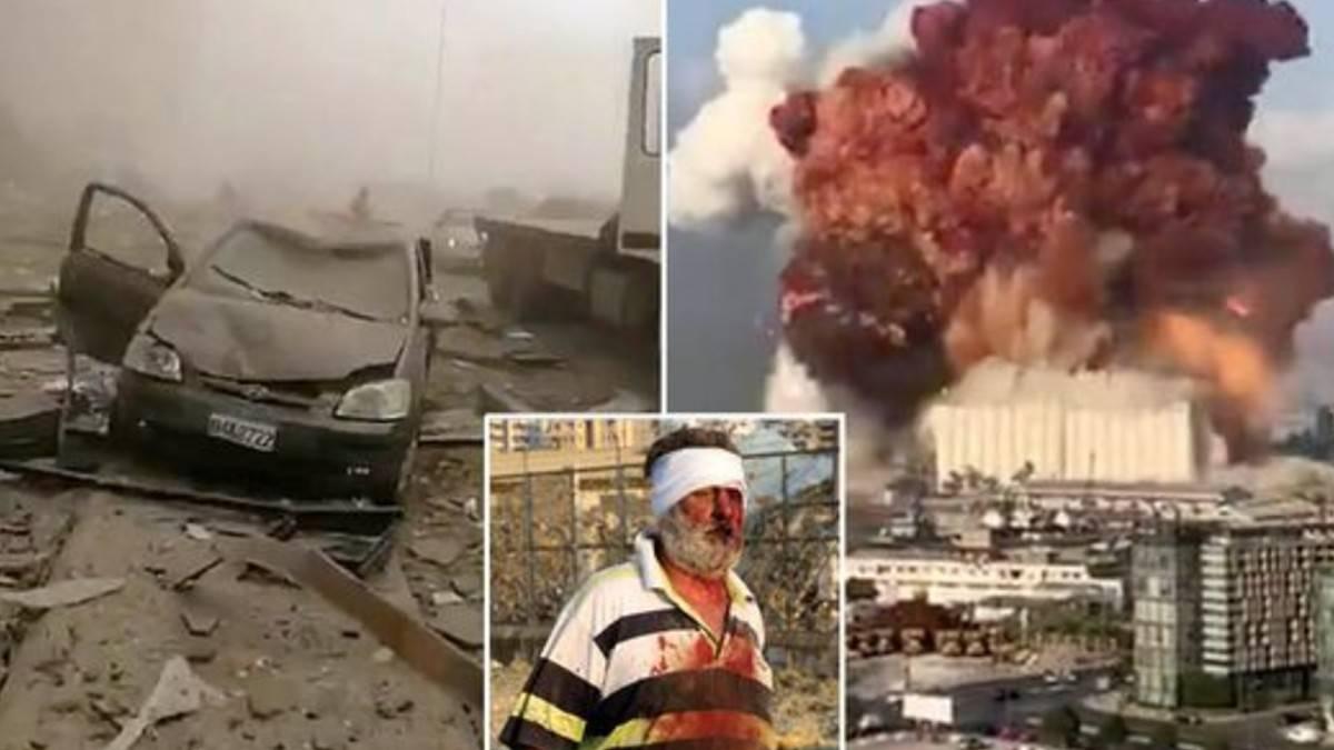Video dell'esplosione a Beirut ed aggiornamenti: almeno 30 morti, migliaia di feriti. Per Dagospia colpito desposito di armi