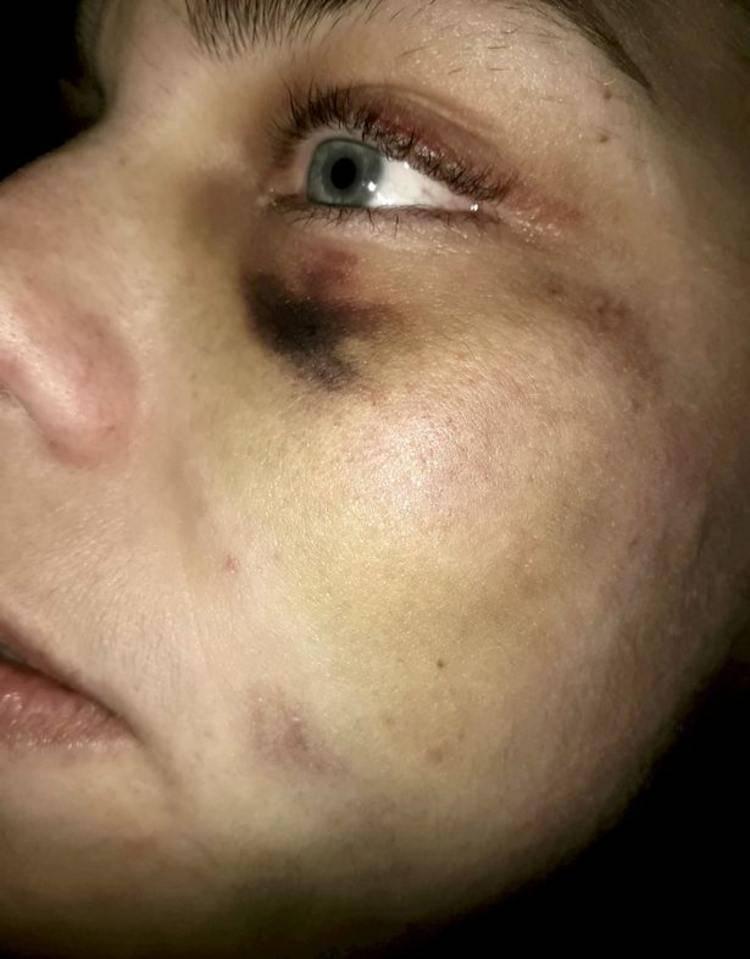 nicola frost violenza domestica